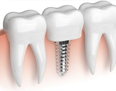 Industry Trend The global dental implants market is steadily growing as the demand for better dental care rises. According to the Dental Implants and Prosthetics Market Global Forecast, revenue for th...